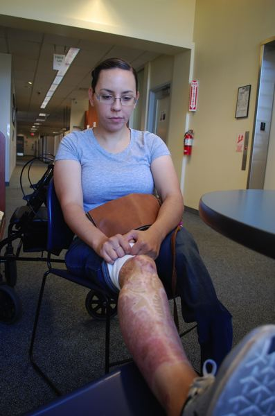 PHOTO BY RAYMOND RENDLEMAN - Kelsey Zionskowski has extensive scarring on her right leg, which OHSU medical personnel were able to save after a 2014 crash.