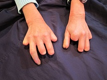 SUBMITTED PHOTO - Maria Rivelli's loss of fingers display the harsh effects of scleroderma throughout nearly 20 surgeries required by the thickened collagen associated with the disease.